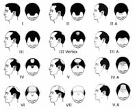 Hair Loss Solutions Guide